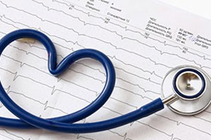 5 Tips for Preparing for a Cardiac Stress Test